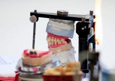 Gebiss Szene 2 Zahntechnik Praxis Zahnarzt Dr. Bals